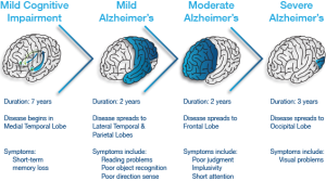 Alzhemer's progression