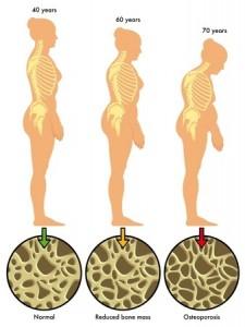 osteoporosis-2